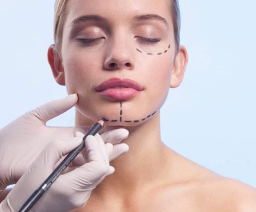yüz germe ameliyatı