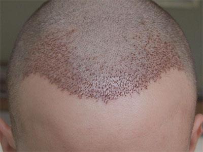 Saç ekimi operasyonunda donör bölgeden köklerin istenilen düzeyde gelmemesinin sebepleri