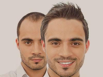 Saç ekimi operasyonundan sonra iyileşme süreci