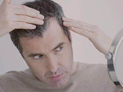 Saç ekimi operasyonundan sonra nasıl bir yol izlenmelidir