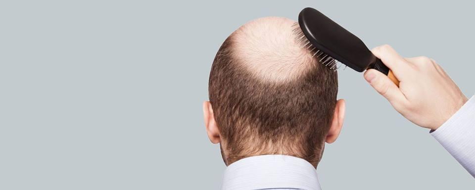 saç ekim merkezi