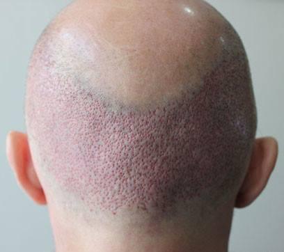Greft saç ekim