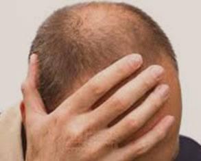 iyi bir saç ekim merkezi nasıl olmalıdır