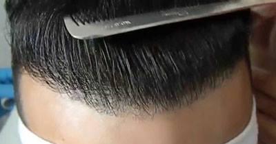 Saç ekiminde istenilen sıklığın elde edilmesi