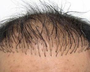 yanlış saç ekimi nasıl düzeltilir