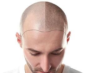 Kişiye özel saç çizgisi