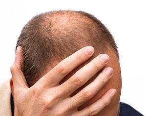 Saç ekiminde seans aralıkları